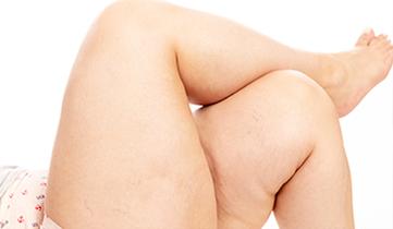 salute gambe obesità centro medico tiziano